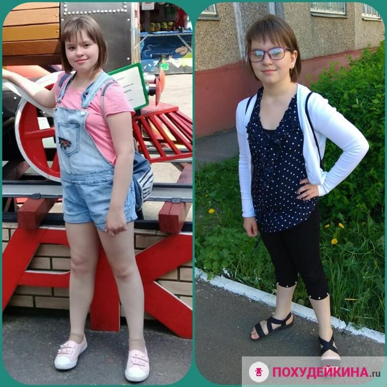 Похудение Подростков 12 Лет. Причины похудения и примерное меню для соблюдения диеты девочки подростка в домашних условиях